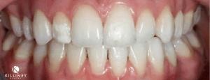 Teeth Whitening Dublin After
