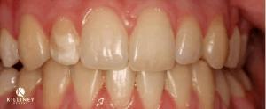 Teeth Whitening Dublin Before
