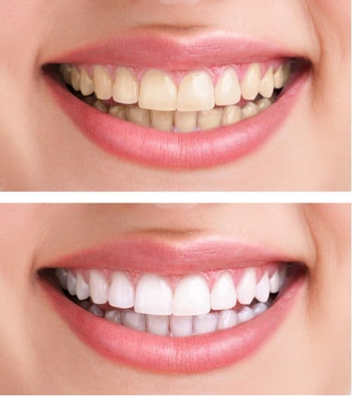 smile makeover dublin