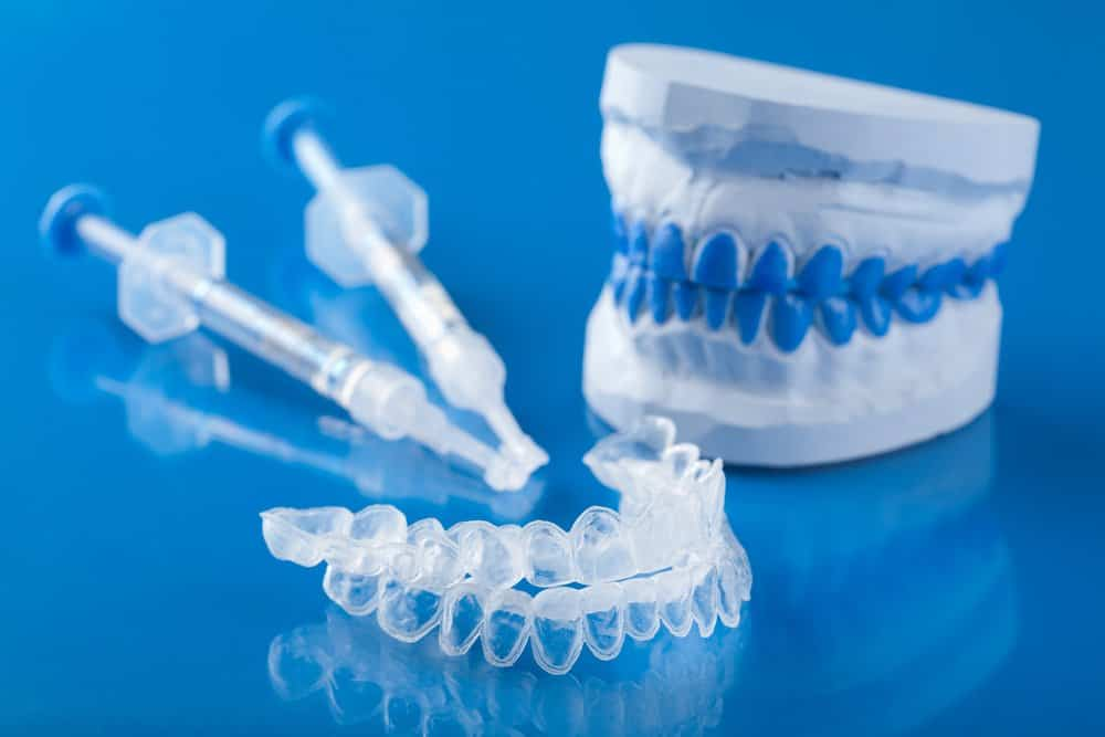 Demystifying tooth whitening