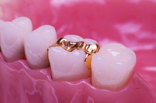 dental inlays and onlays dublin
