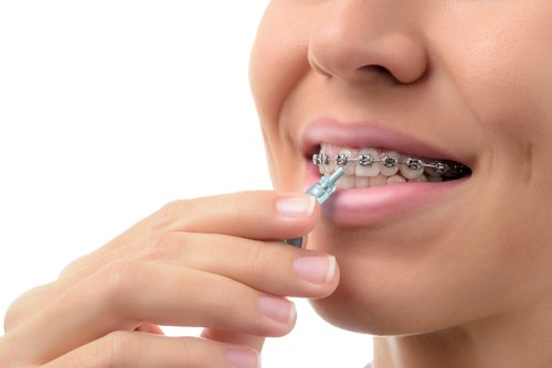 dental braces - Woman cleaning orthodontic in Dublin