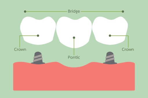 Dental Bridges - Cosmetic Dentist in Dublin