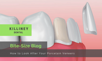 How to Look After Porcelain Veneers
