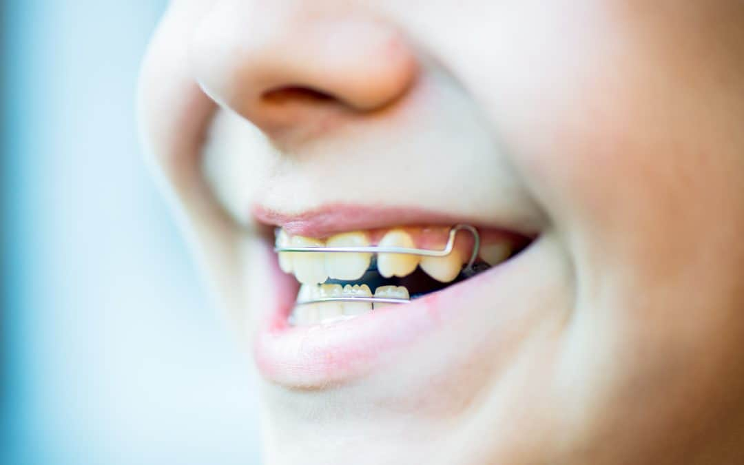 Parents: Alternatives to Teenage Braces
