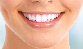 Are Dental Implants Lifelong Permanent?