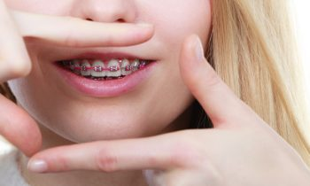 Myths About Having Braces As An Adult