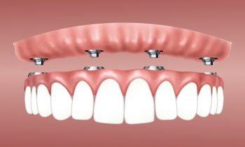 What Are The Benefits of Dental Implant Dentures?