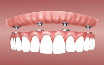 How Does a Dental Implant Retained Dentures Work?