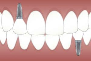 dental implant price